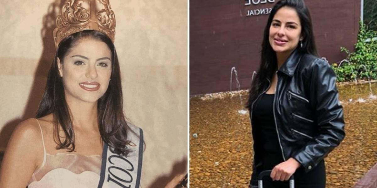 (Foto) Así le quedaron los labios a Catalina Acosta tras quitarse los biopolímeros