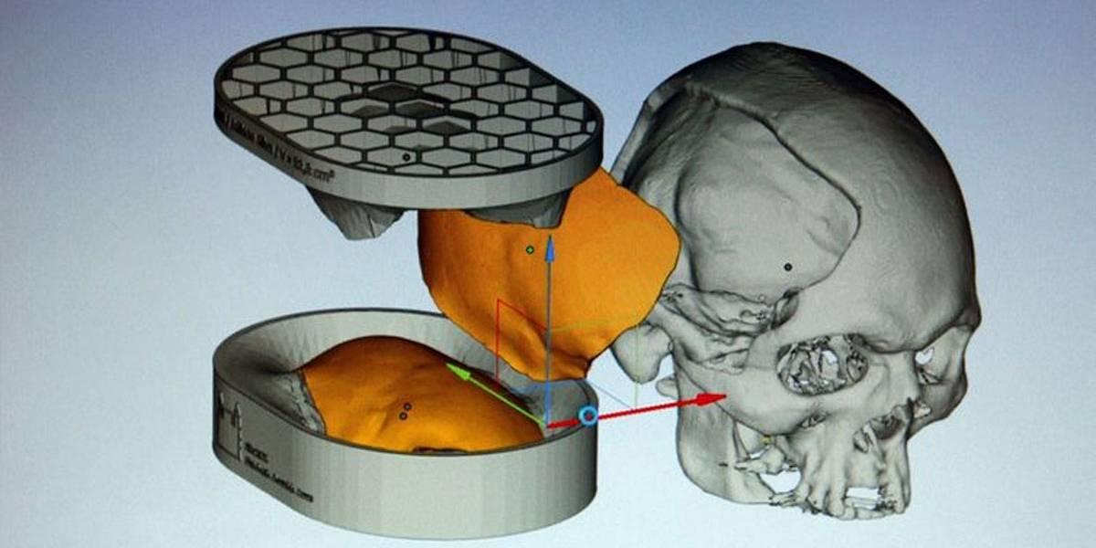 Brasileiros desenvolvem tecnologia de reconstrução craniana