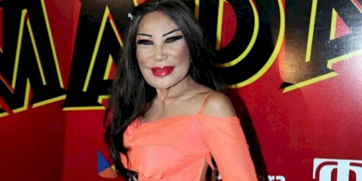 """¡Impactante! Así lucía Lyn May antes de """"desfigurar"""" su rostro con múltiples cirugías"""