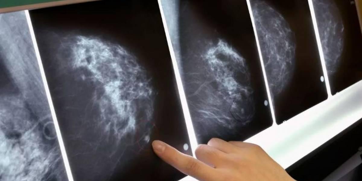 La IA de Google Health puede detectar el cáncer de mama