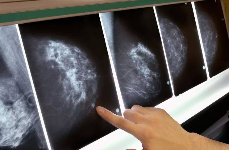 Cáncer: científicos presentan posible cura para la enfermedad obtenida desde el humano