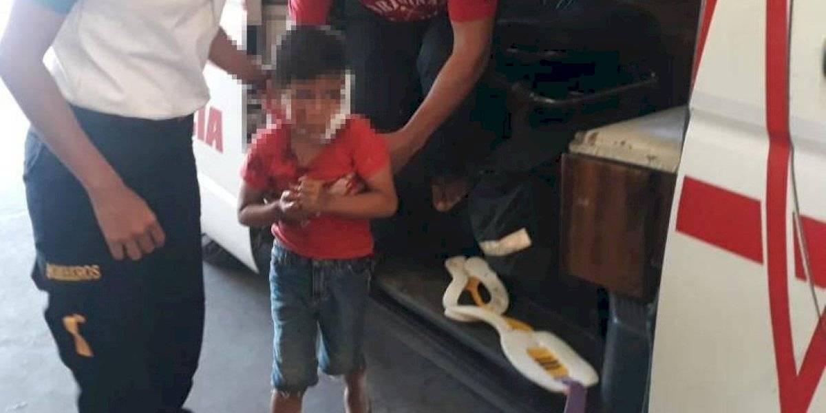 Pitbull ataca a niño de cinco años y le ocasiona heridas en el rostro