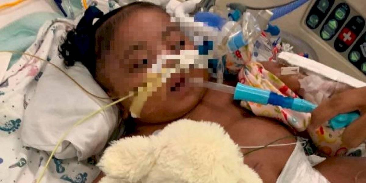 La lucha legal de una madre por mantener a su hija con respirador artificial: hospital quiere sacarla de soporte vital porque está sufriendo y no mejorará