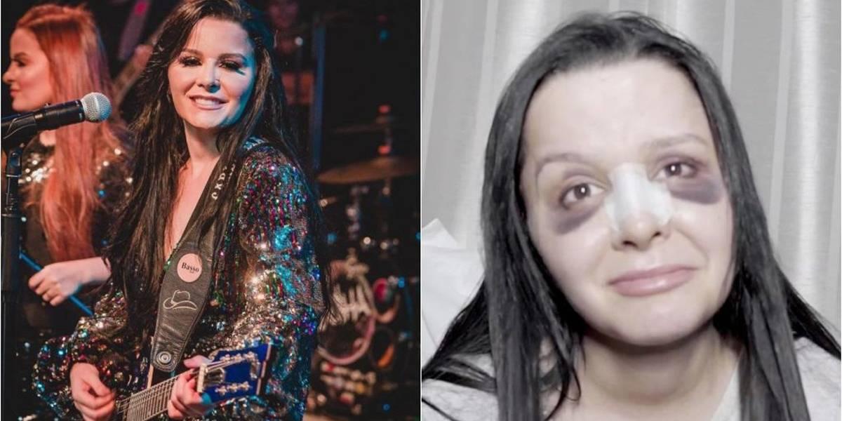 Maraisa passa por cirurgia plástica e aparece com olhos roxos nas redes sociais