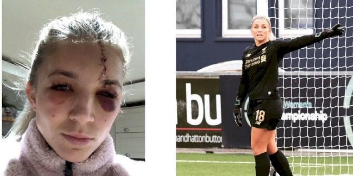 Portera del Liverpool sufre espeluznante cortada