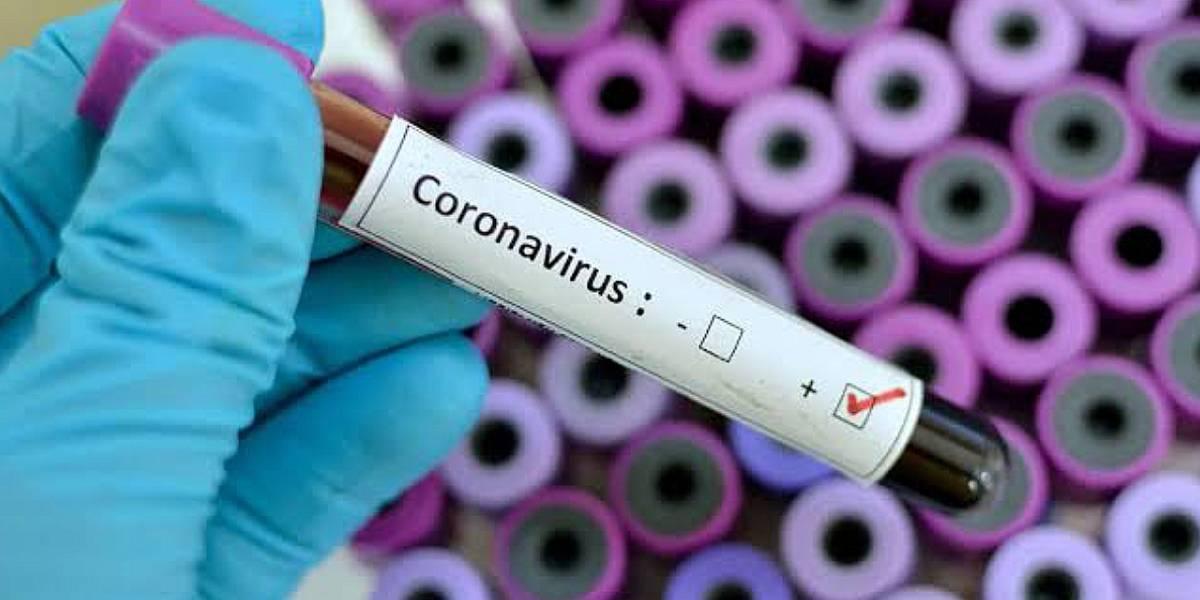 Coronavirus: Estos son los síntomas que presenta en los humanos