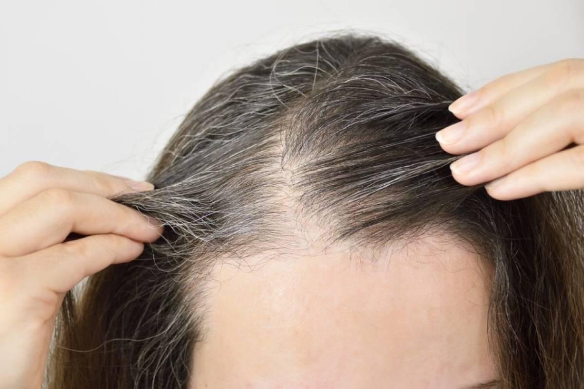 Agua De Batata Para Escurecer O Cabelo cabelo branco: 4 jeitos de usar o alecrim para acabar com os