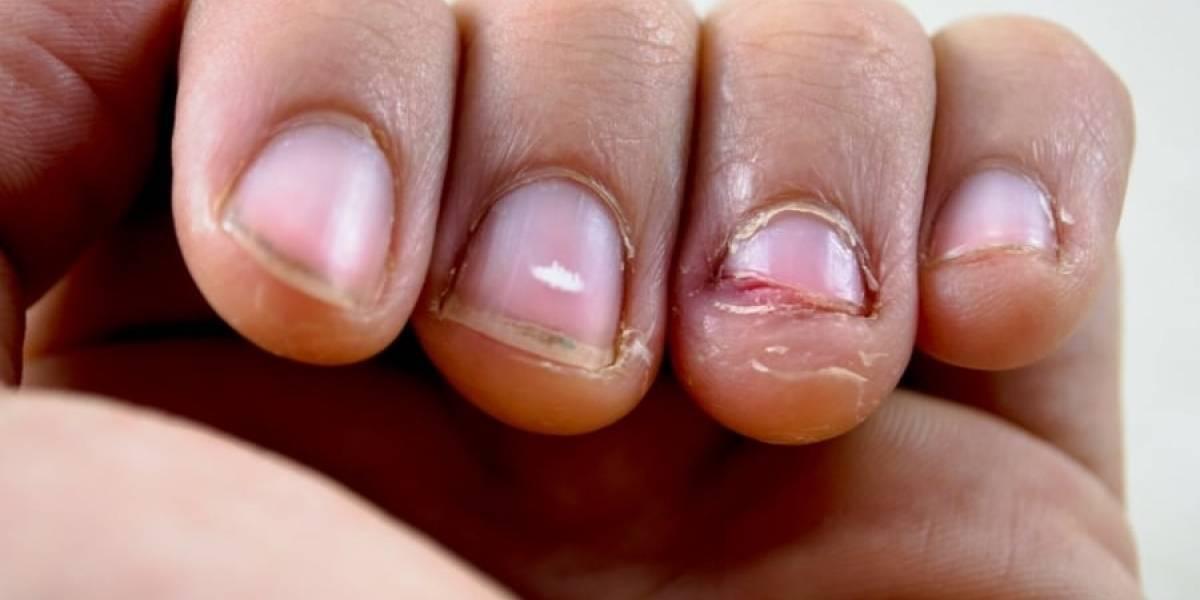 Estuvo al borde la muerte: hombre sufre grave infección por comerse las uñas