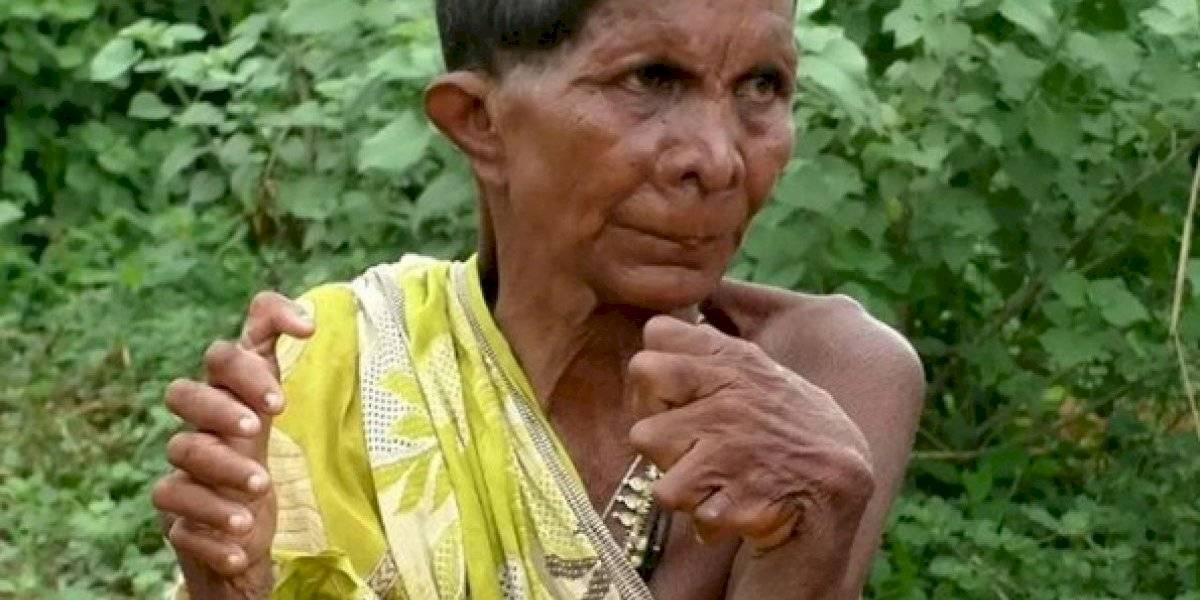 Mulher com 31 dedos entra para o Guiness Book, mas sofre ao ser tratada como bruxa pelos vizinhos