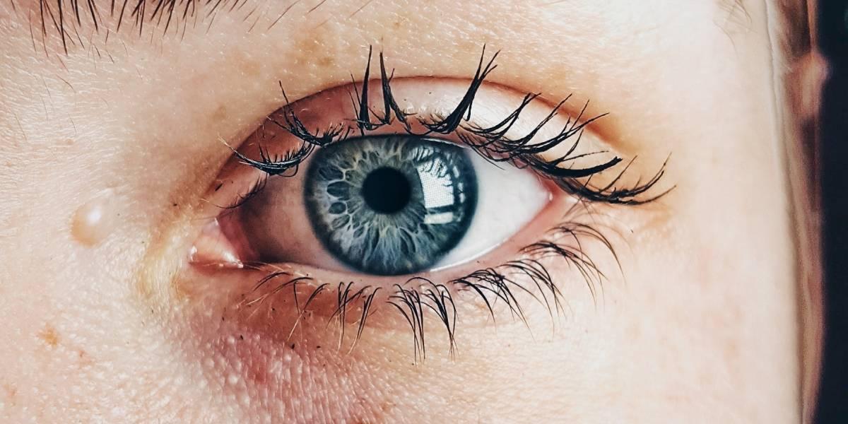 Olheiras: use bicarbonato e acabe com as bolsas nos olhos