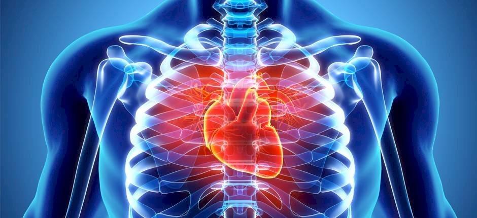 infartocorazn225-b1c030a0ec85bdddd42ed4dc79a6ced8.jpg