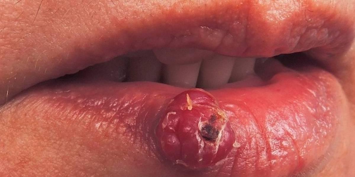 El insólito caso que desafía a la ciencia: mujer italiana sufre por el crecimiento de pelos en su boca