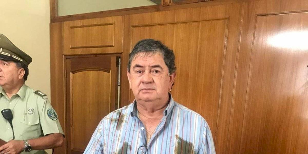 """""""Me lanzó eso en la cara"""": concejal DC de Talca es atacado con excremento por funcionaria de la Municipalidad"""