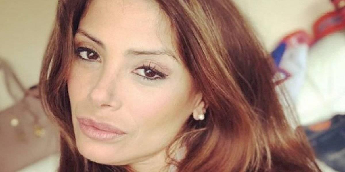 Roxana Muñoz muestra los resultados que le dejó mal procedimiento médico en sus labios