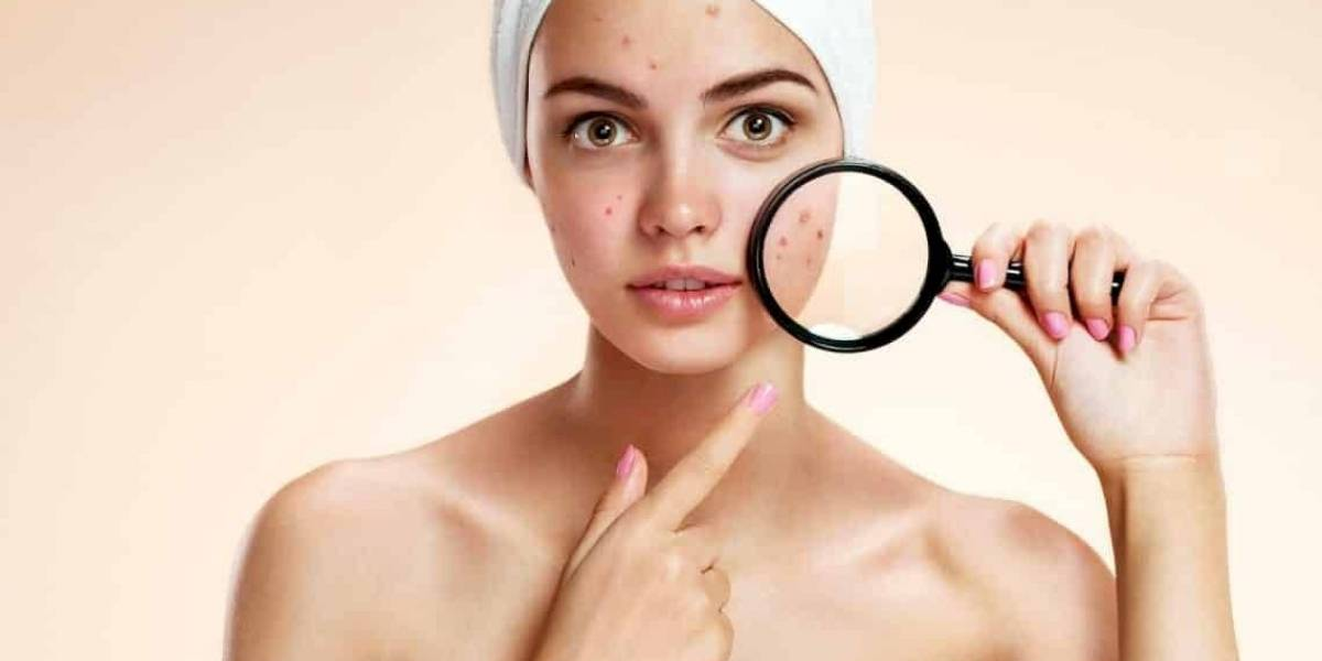 Problemas com espinhas? Experimente esta máscara para combater a acne