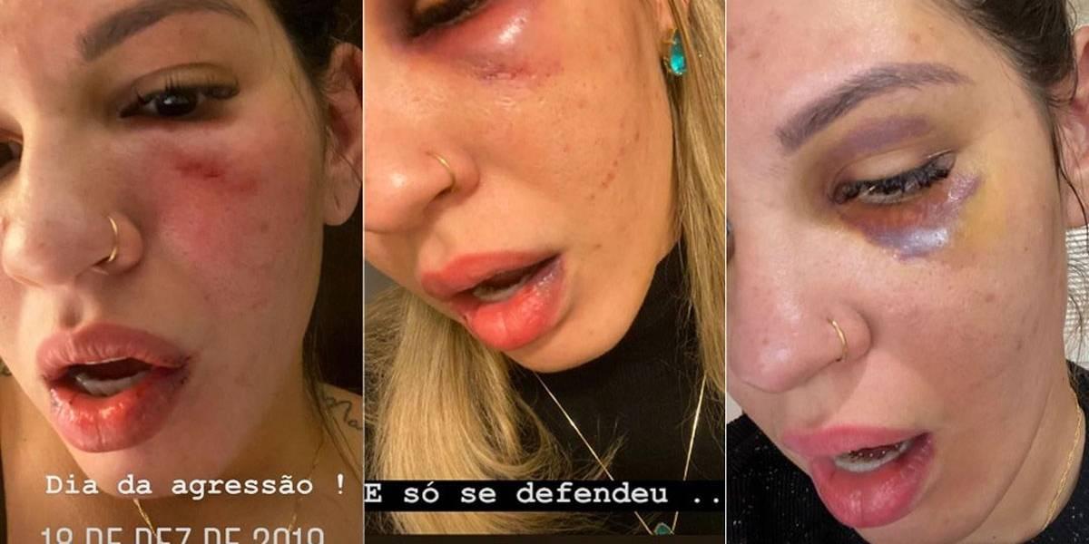 Ex-mulher de Jean divulga novas fotos de agressão