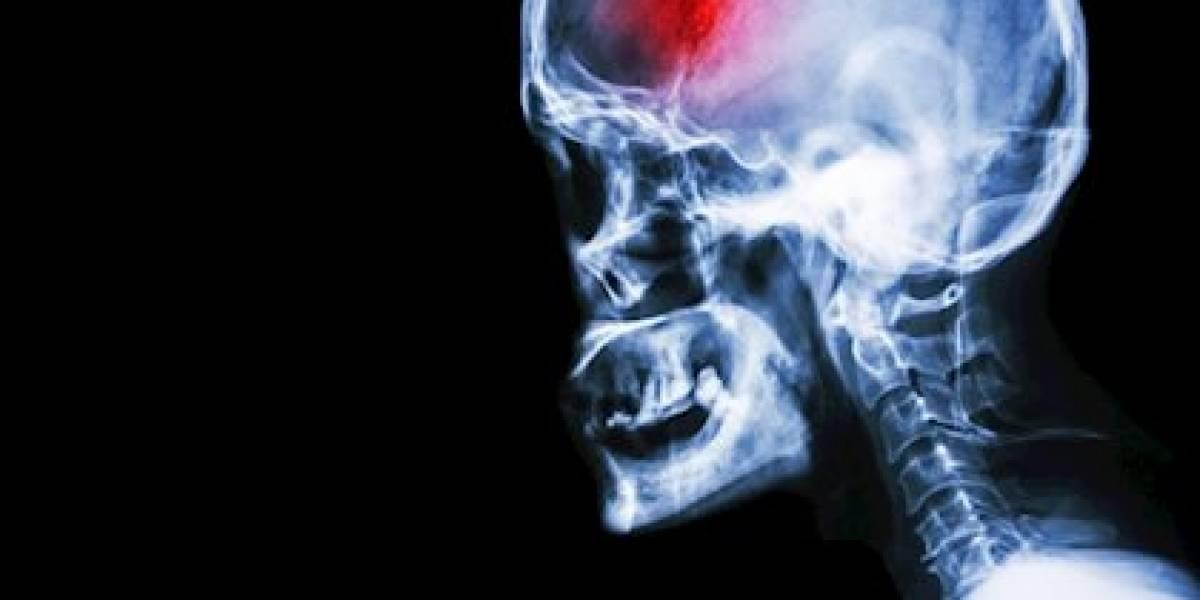 Recomendaciones para identificar un accidente cerebro vascular