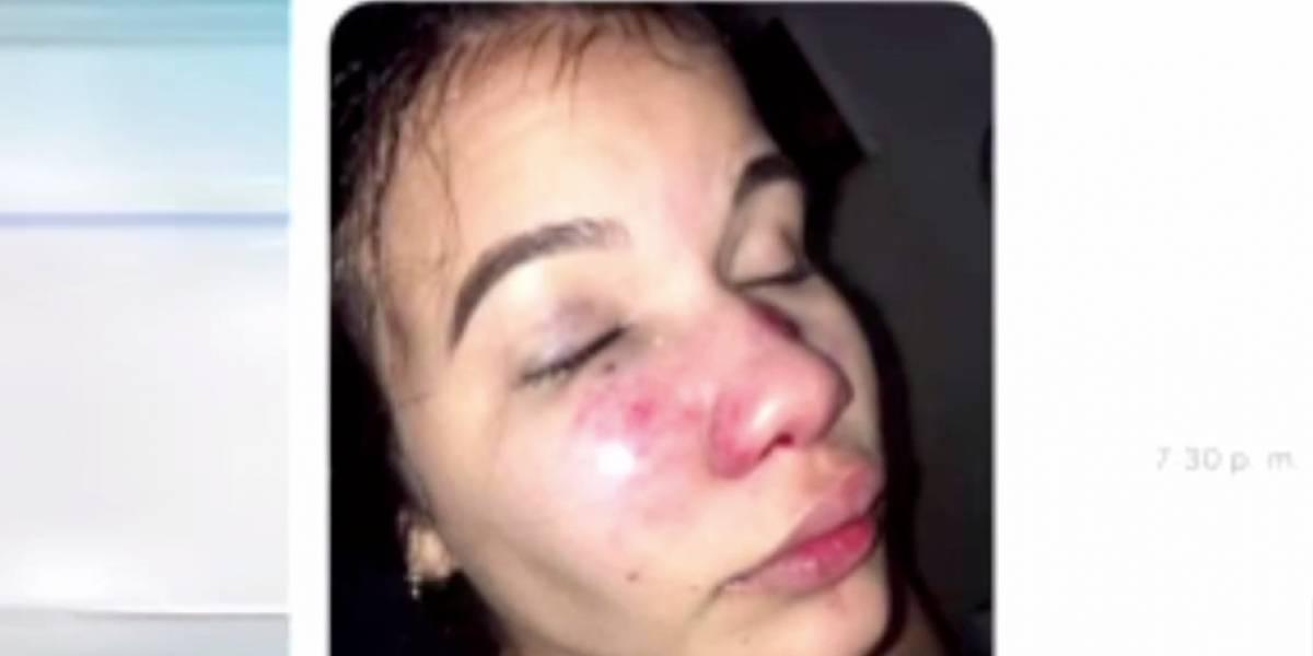 Joven de Arecibo pide ayuda a las autoridades tras ser víctima de violencia por su ex pareja