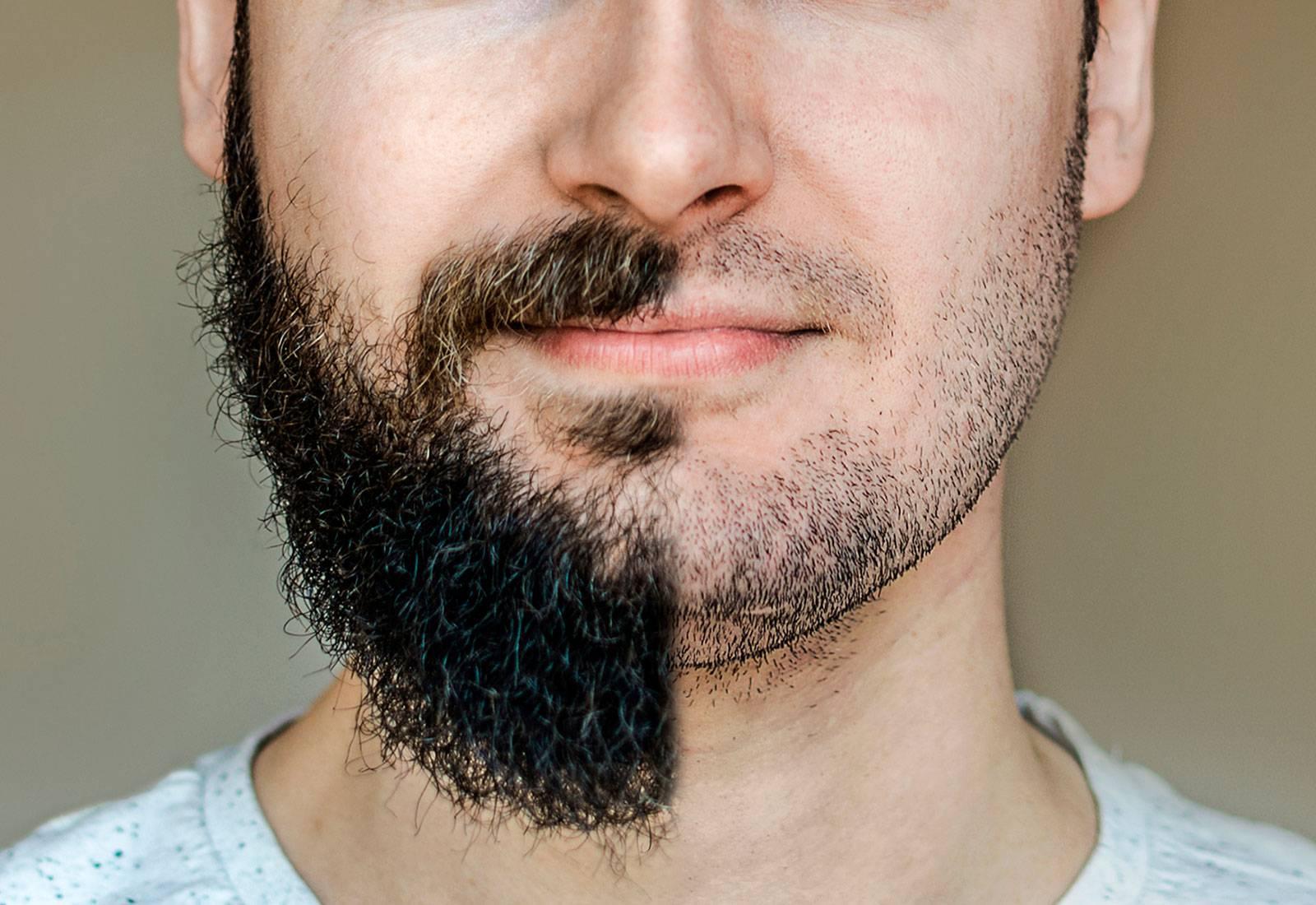 Coronavirus: científicos afirman que la barba en el rostro puede ser peligrosa durante el brote