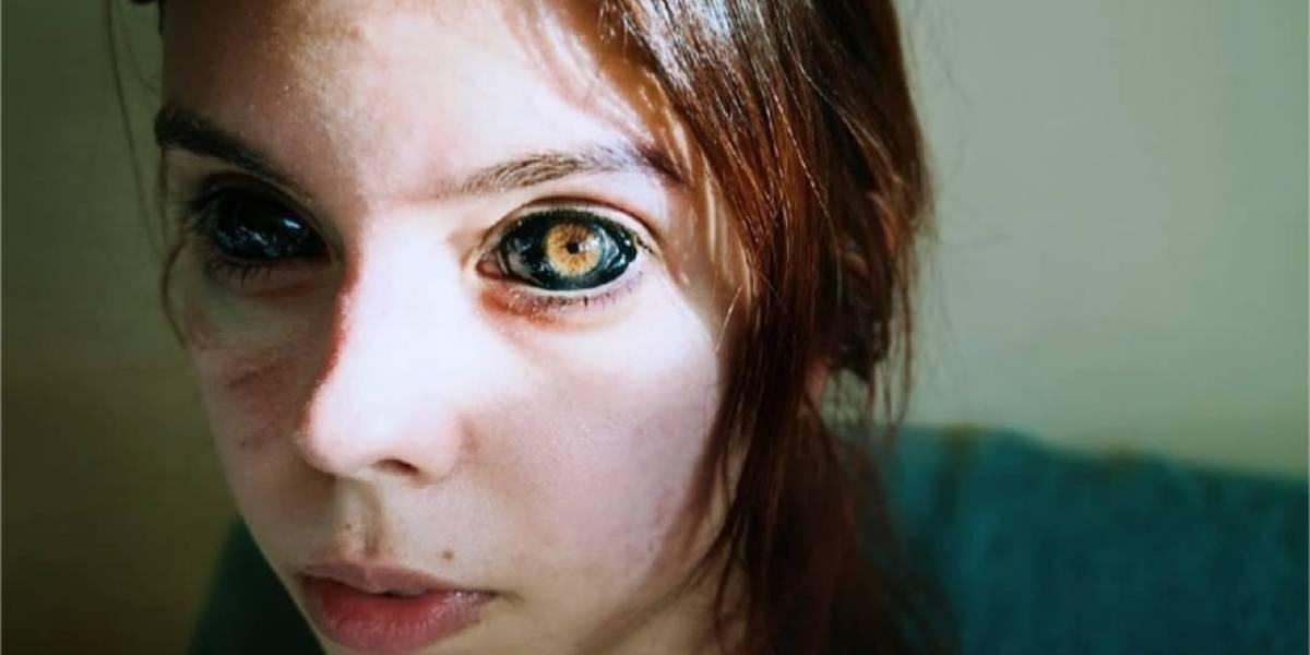 Modelo de 25 años queda ciega luego de tatuarse los ojos de negro
