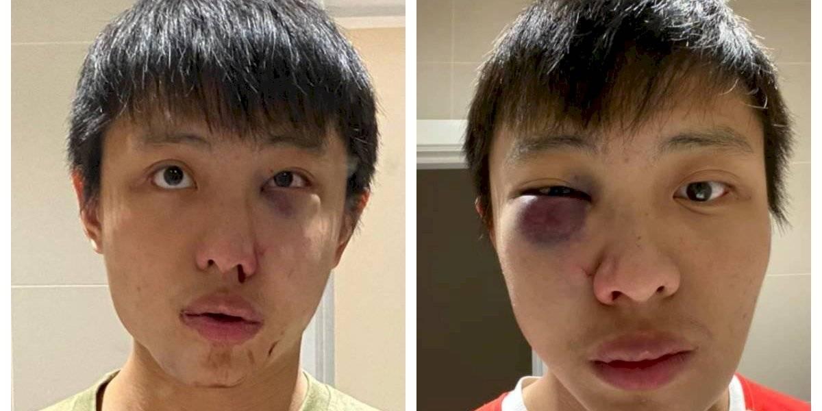 """""""No quiero tu coronavirus en mi país"""": joven de 23 años de Singapur fue agredido en Londres sólo por tener """"rasgos asiáticos"""""""