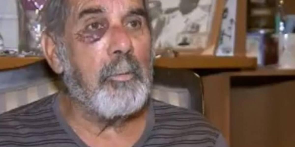 """Desgarrador relato de hombre de 69 años golpeado por carabinero: """"Actúan sin ningún criterio"""""""