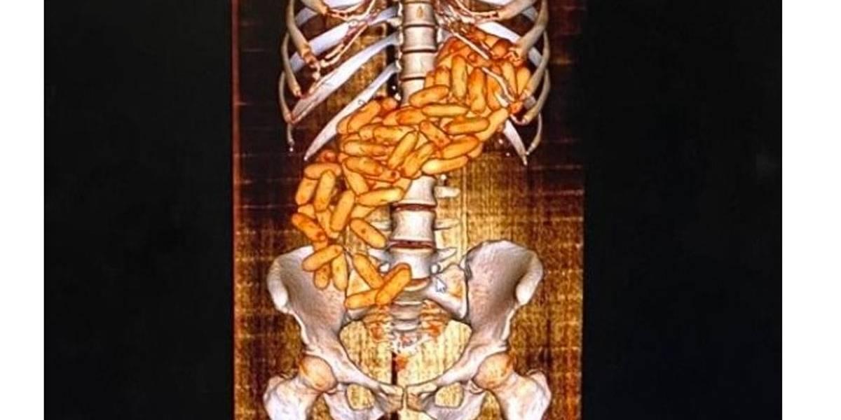 Mulher é presa e exame mostra 100 cápsulas de cocaína no seu estômago