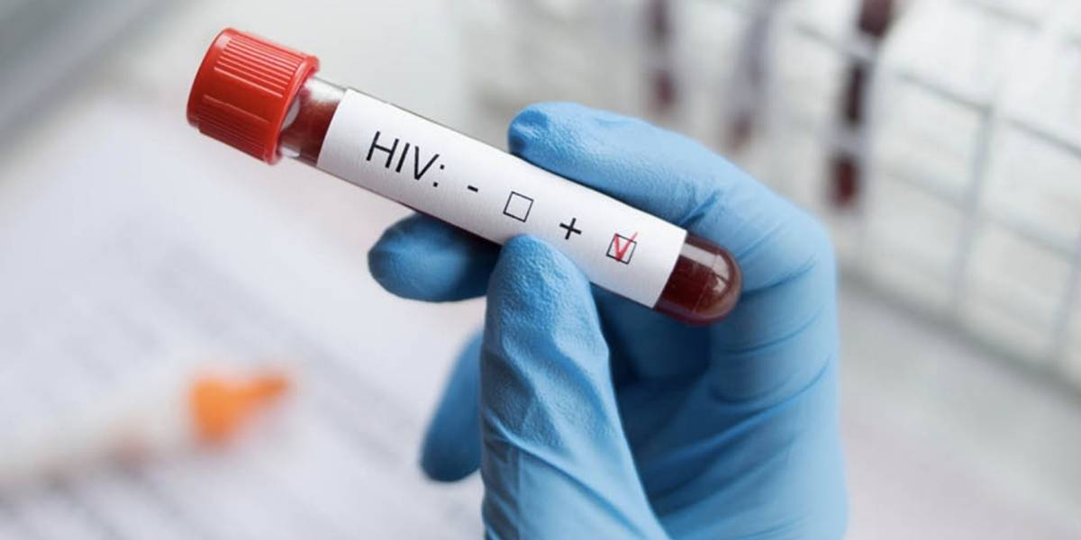 Otro paciente se cura de VIHgracias a trasplante de células madre