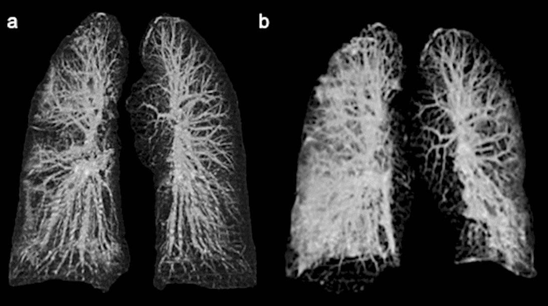 Radiografía pulmonar de pacientes de coronavirus en Italia