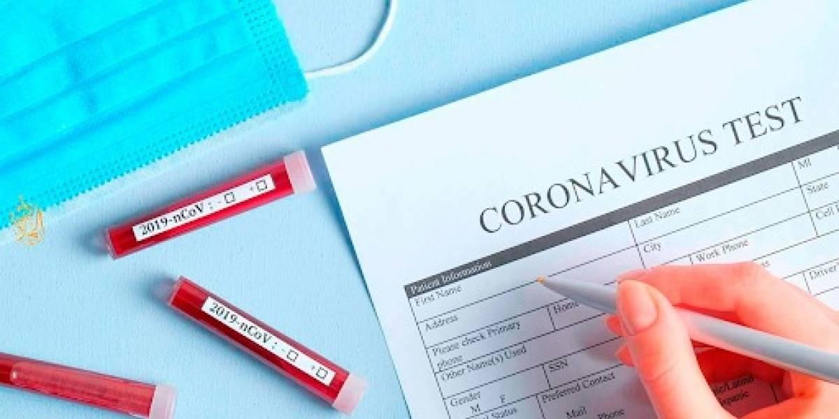 Coronavirus: ¿en qué consiste la prueba para detectarlo?