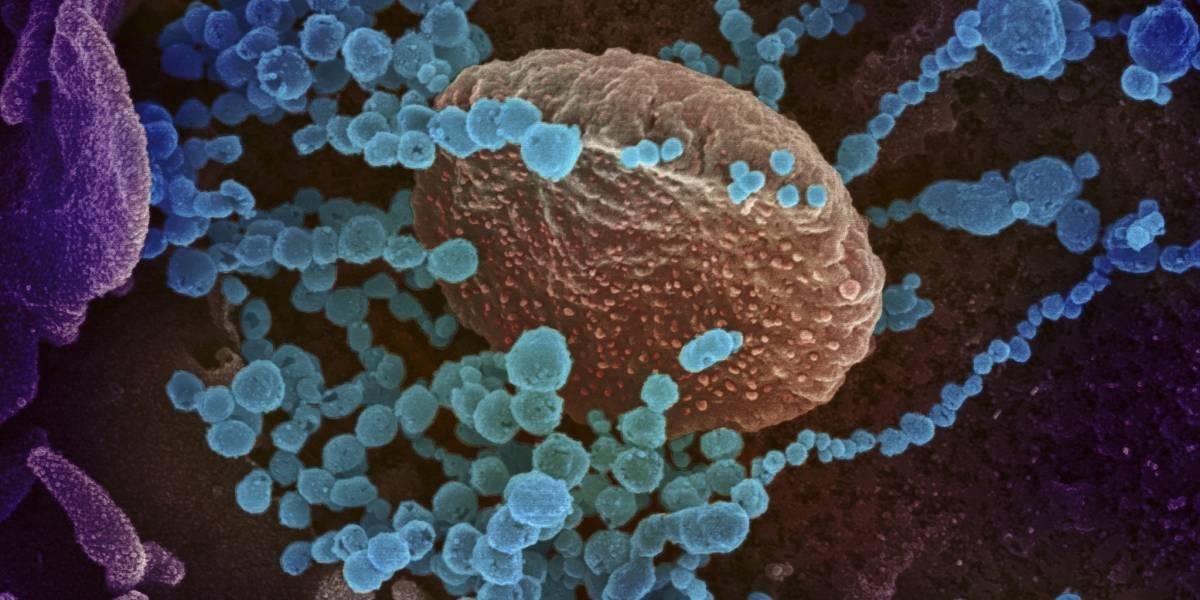 Esto es lo que el coronavirus le hace a nuestro cuerpo
