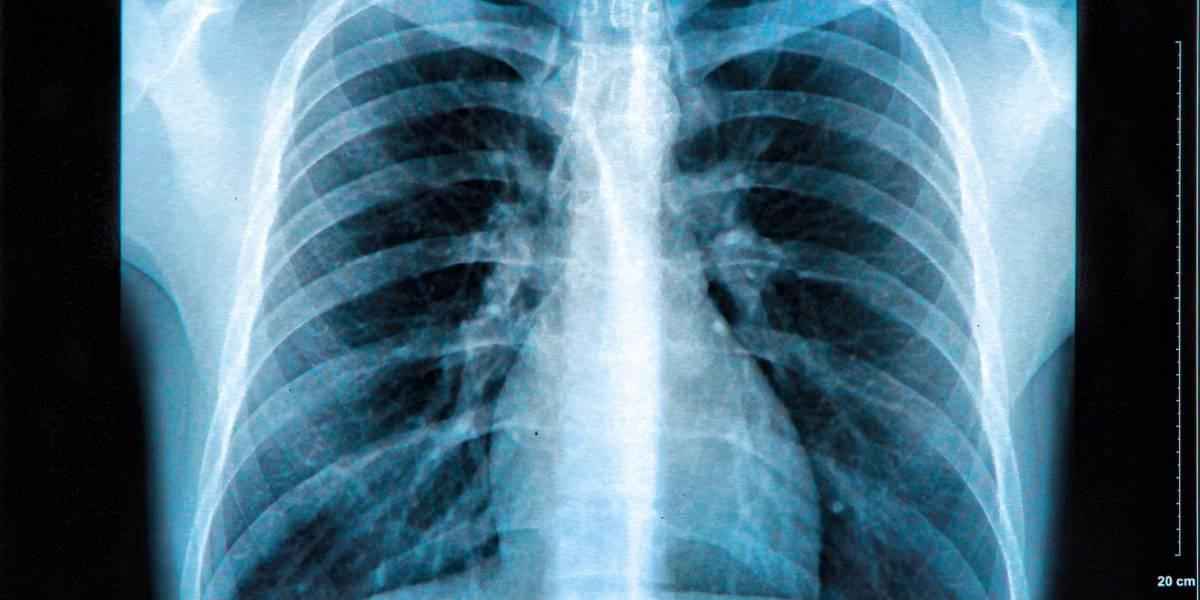 ¿Es recomendado el uso de placa de pecho para el diagnóstico de COVID-19?