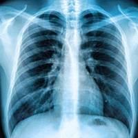 Síntomas de Covid permanecen hasta un año en quienes enfermaron de gravedad