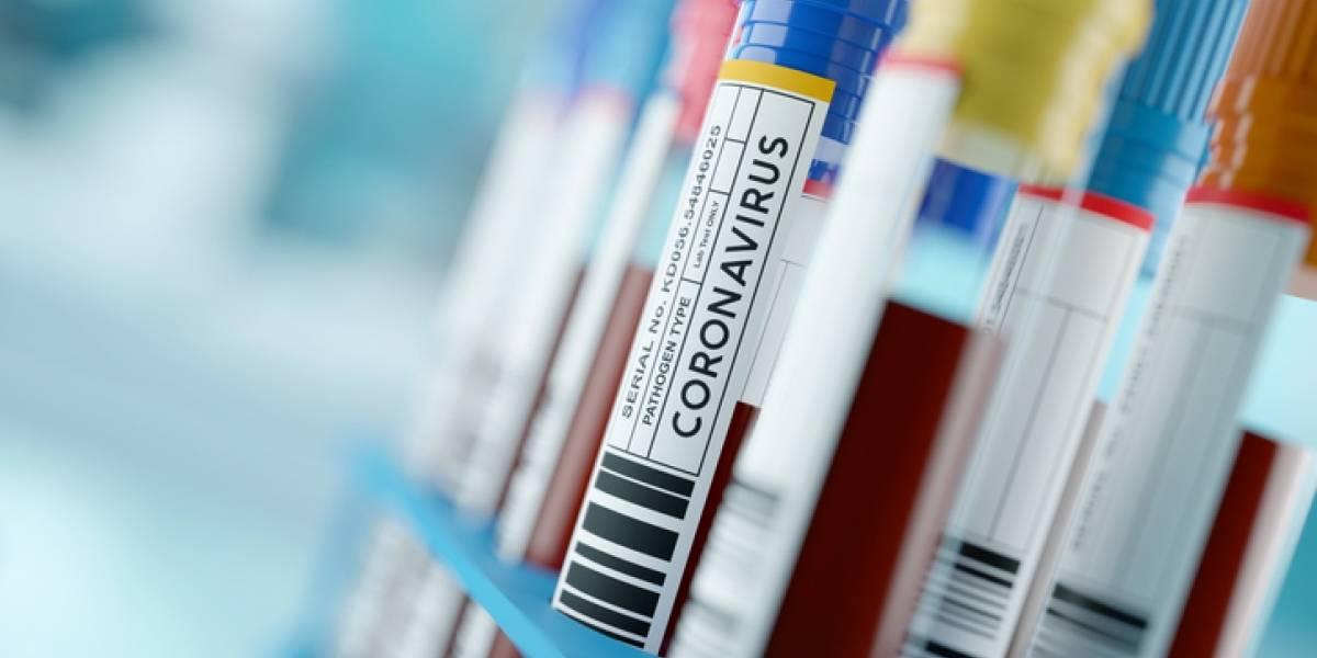 Asciende a 79 el número de casos coronavirus en Puerto Rico