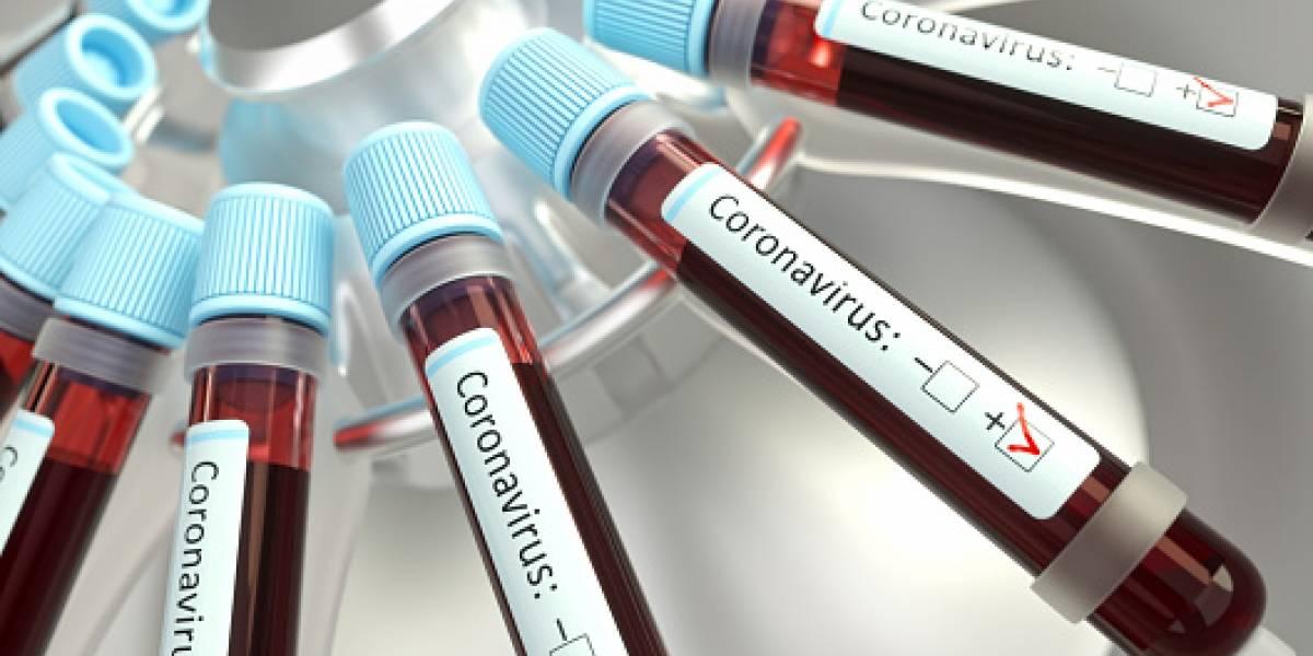 Prueba podrá detectar el coronavirus en 45 minutos