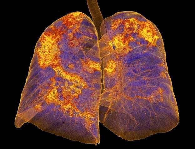Pulmones afectados de coronavirus muestra neumonía BBC
