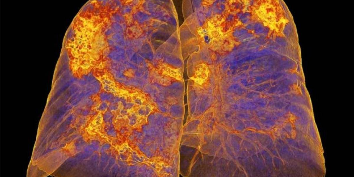 ¿Qué les pasa a tus pulmones de acuerdo a la gravedad del cuadro de coronavirus?