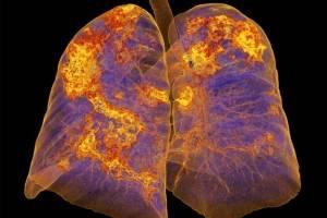 Pulmones afectados de coronavirus muestra neumonía