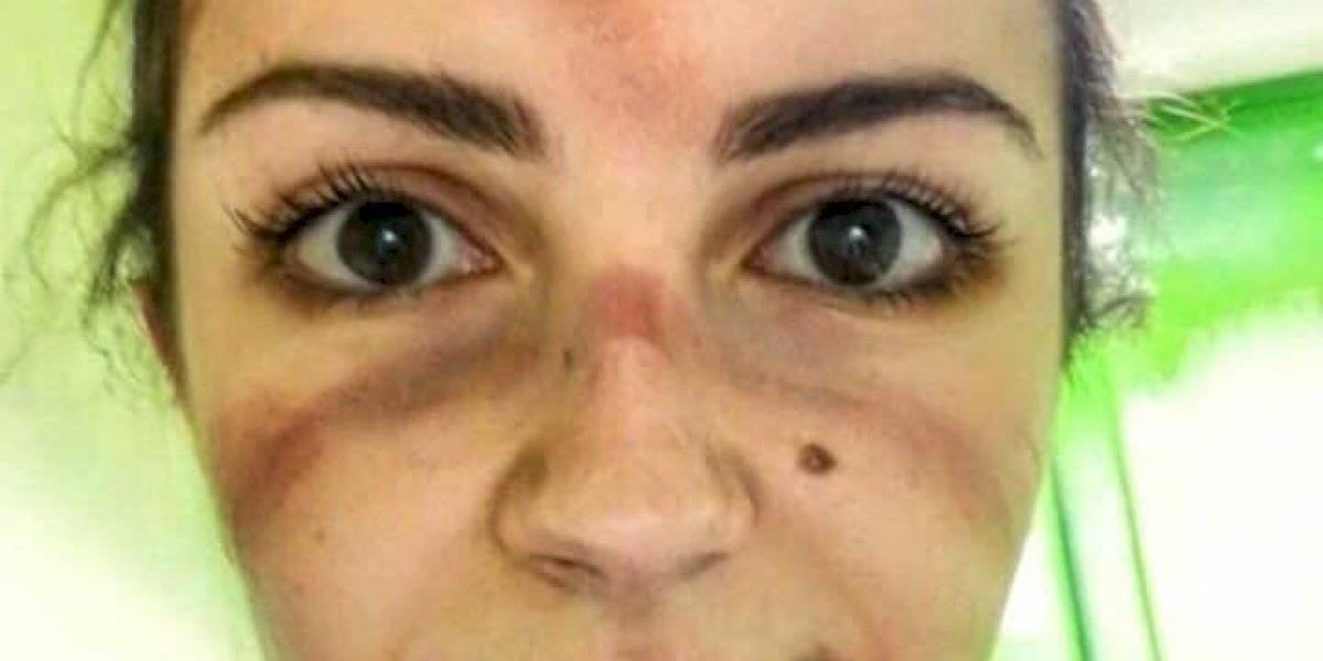 """Estas marcas deja el coronavirus en la cara de doctores """"Primera Línea"""" que lo tratan"""