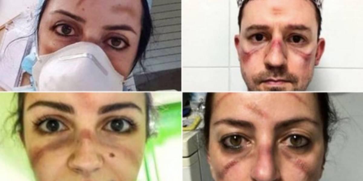 Médicos italianos muestran los efectos de las largas horas de trabajo