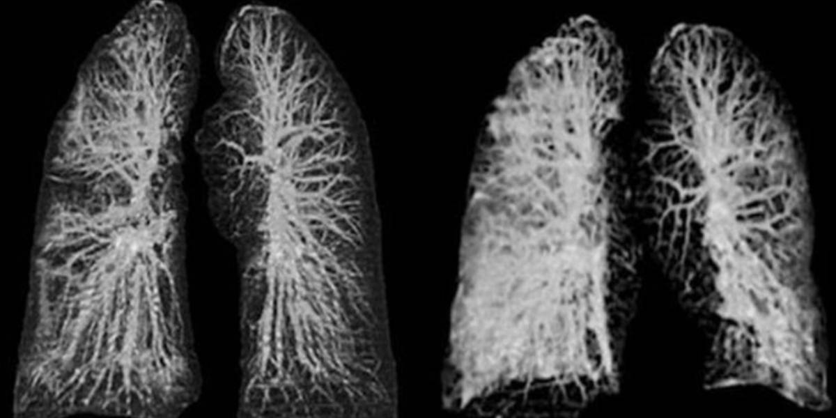 Coronavirus: así afecta los pulmones de los 4 tipos de pacientes
