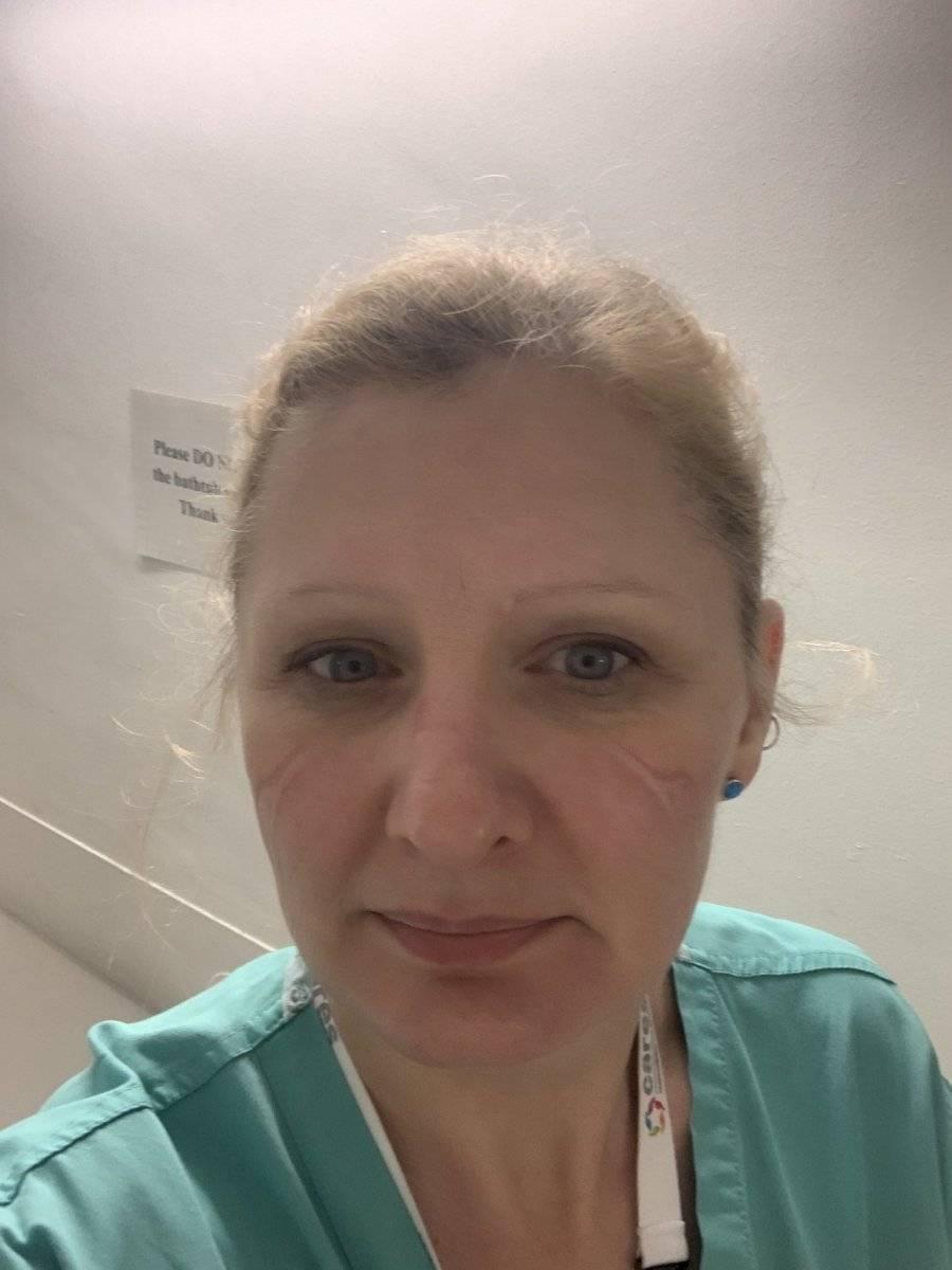 """Liz Staveacre, enfermera, Reino Unido Staveacre trabaja como enfermera consultora en cuidados críticos y extensión en el Hospital Hillingdon, Londres. Pasa muchas horas tratando a los pacientes de COVID-19 mientras usa el equipo de protección que deja marcas dolorosas en su cara. """"Mi cara después de 4 horas y media con el equipo de protección personal completo - ¡Ay!"""", comentó recientemente en Twitter"""