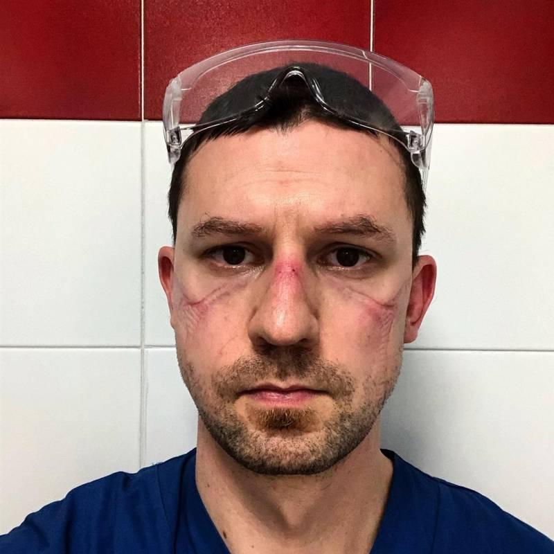 """Nicola Sgarbi, médico, Italia Este médico italiano de 35 años pasó mucho tiempo en la Unidad de Cuidados Intensivos ayudando a tratar a personas infectadas con el coronavirus. """"No amo las selfies. Ayer, sin embargo, tomé esta foto. Después de 13 horas en la UCI después de quitarme todos mis dispositivos de protección, me tomé una selfie"""", dijo Sgarbi en Facebook"""