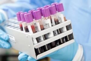 Científicos australianos identifican posible medicamento anti Covid-19 en pruebas de laboratorio