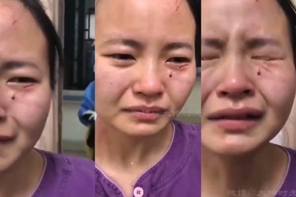 Paciente con COVID-19 golpea y muerde a enfermera en China