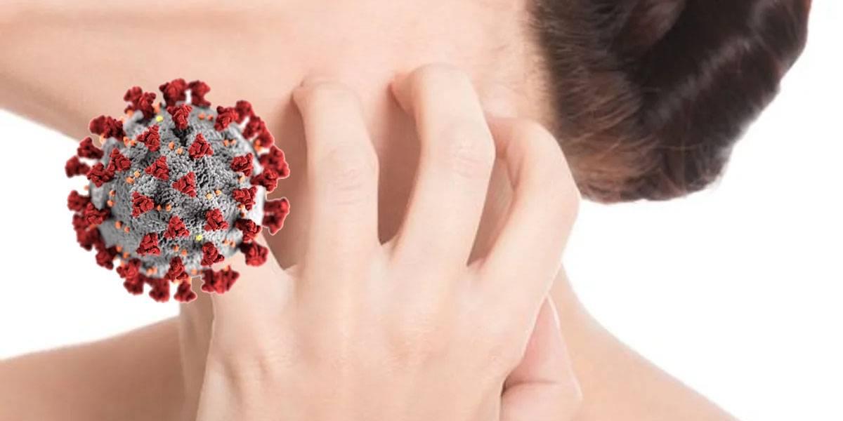 Coronavirus: erupciones en la piel serían otro síntoma clave