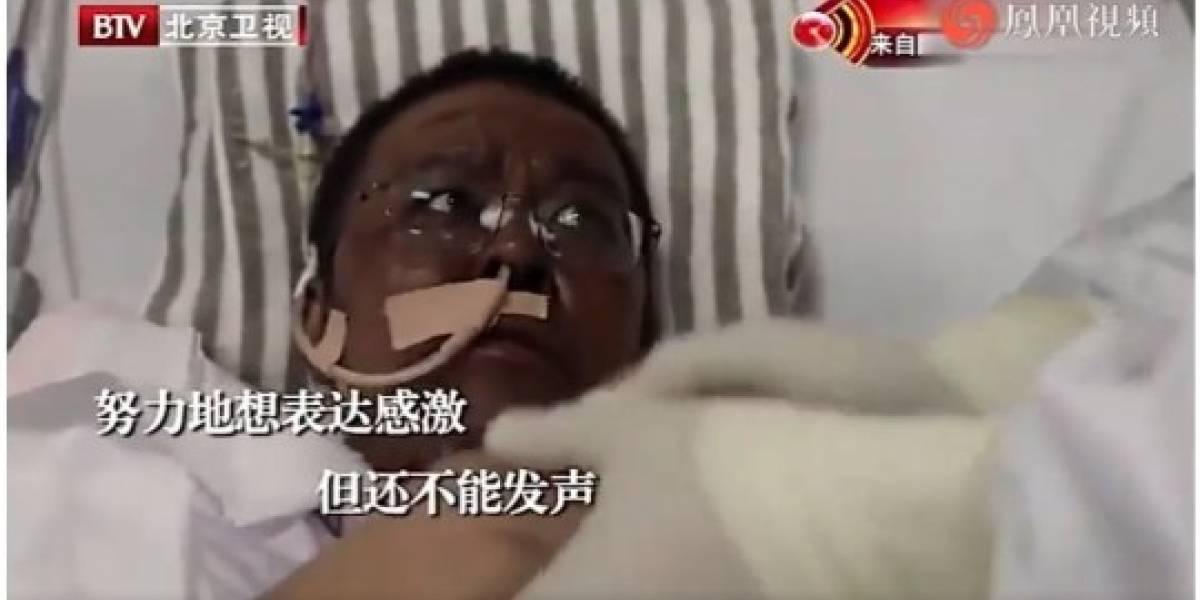 A mudança na cor da pele de dois médicos que sobreviveram ao coronavírus em Wuhan