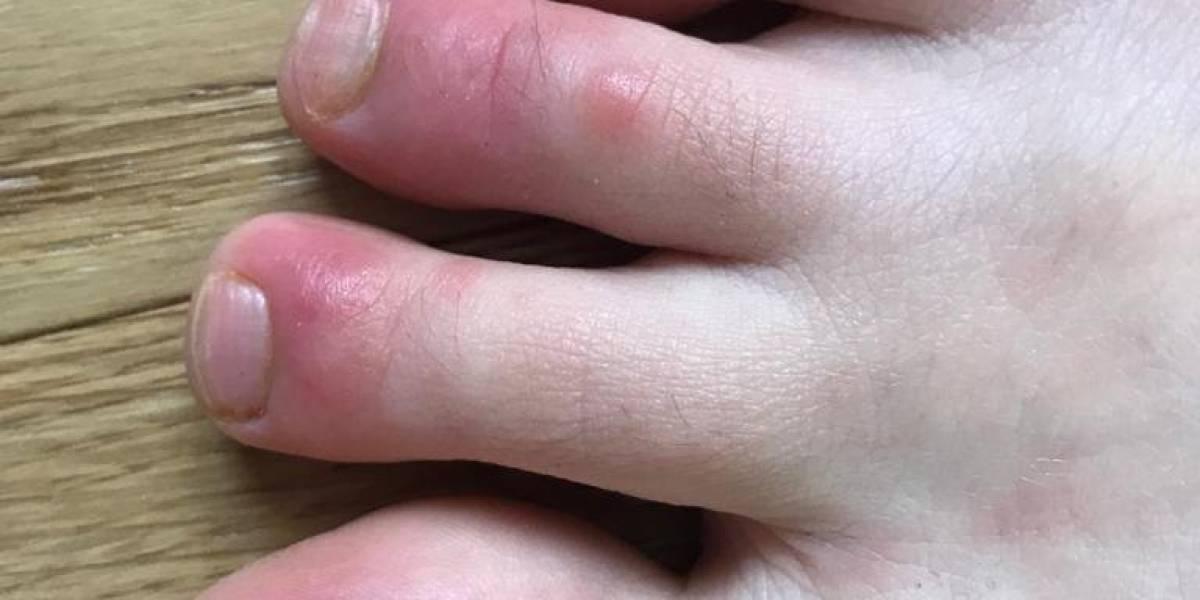 ¿Cuál es el nuevo síntoma del coronavirus que aparece en la piel?