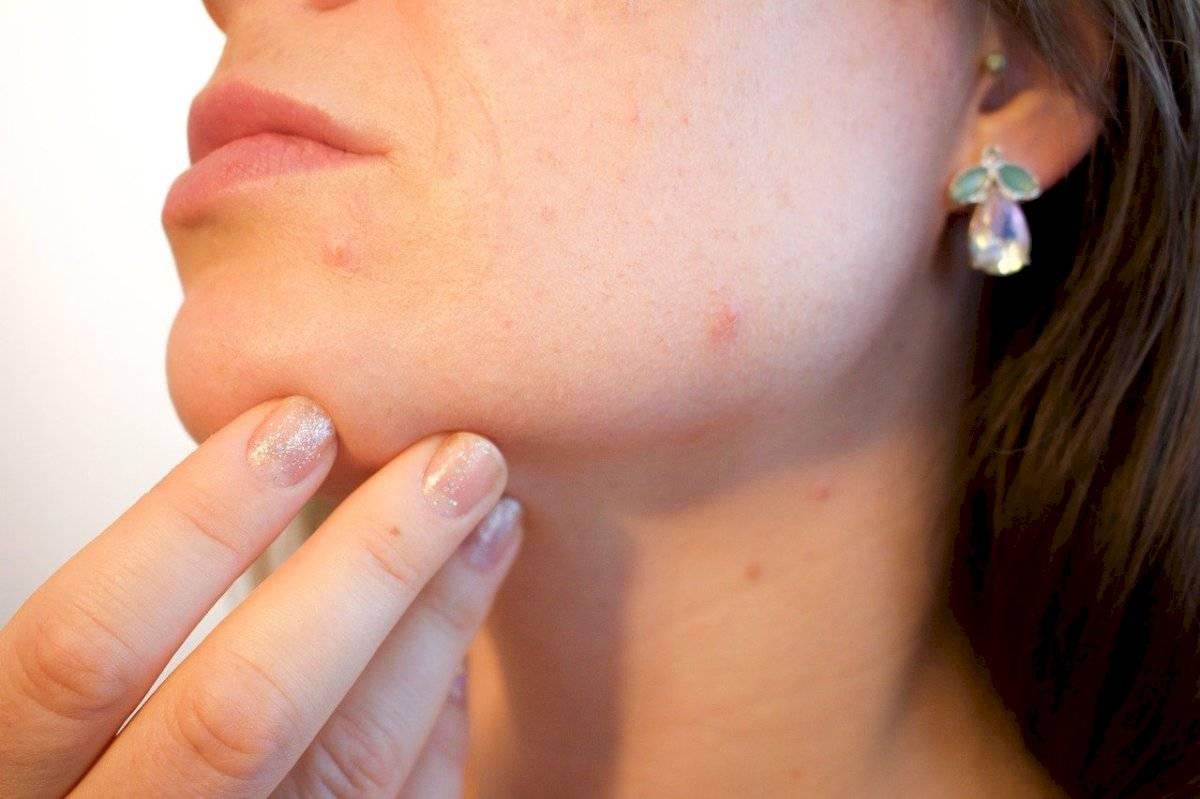 Cinco remedios naturales para el acné