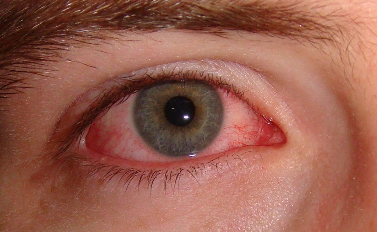 Coronavirus: estudio descubre que las lágrimas podrían ser otra vía de contagio